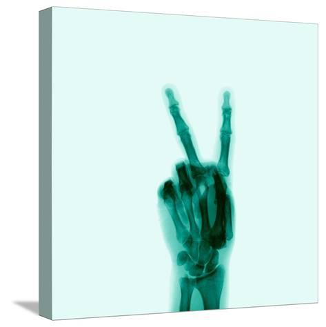 X-Ray of Hand Doing Peace Sign Stretched Canvas Print