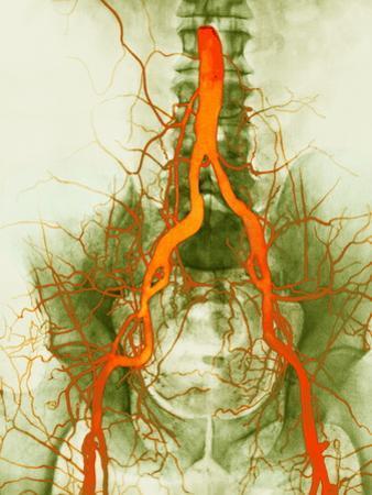 Abdominal Arteries, X-ray