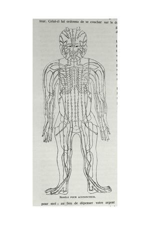 Model for Acupuncture, Illustration from 'Grandeur and Supremacy of Peking'