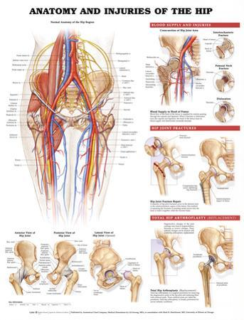 Anatomy and Injuries of the Hip Anatomical Chart Poster Print