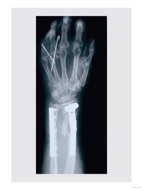 Arm and Finger Repair