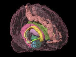Brain Limbic System, 3-D MRI Scan by Arthur Toga