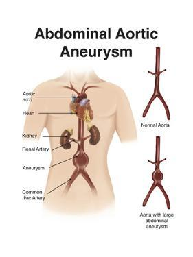 Artist Depcition of Abdominal Aortic Aneuryism (With Labels)