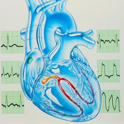 https://imgc.allpostersimages.com/img/posters/artwork-of-cardiac-arrhythmia-with-heart-ecgs_u-L-PKEIPW0.jpg?artPerspective=n