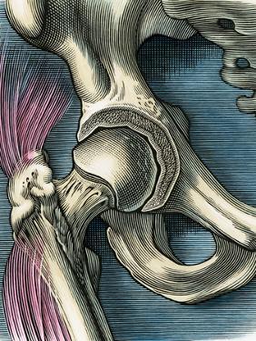 Hip Joint, Artwork by Bill Sanderson