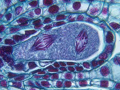 Lily Meiosis Showing the Second Division of Anaphase in the Embryo Sac (Lilium), LM X150