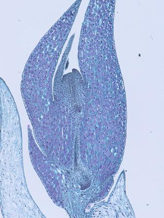 Longitudinal-Section of a Lycopod Gemma (Lycopodium), LM X8