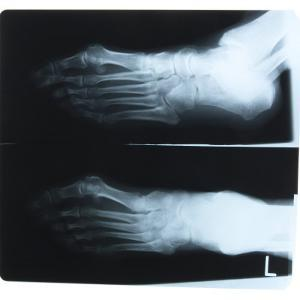 Black and White X-Ray Photograph of Feet of Person