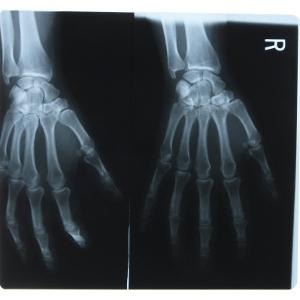 Black and White X-Ray Photograph of Hands of Person