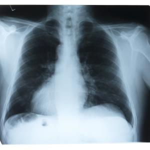 Black and White X-Ray Photograph of Ribcage of Person