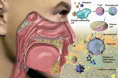 Illustration of the Human Head Showing the Mouth, Nose, and Throat Illustrating Allergy Symptoms