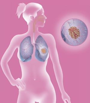 Lung Cancer, Drawing by Caroline Arquevaux