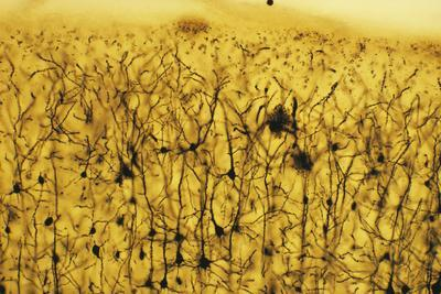 https://imgc.allpostersimages.com/img/posters/cerebral-cortex-nerve-cells_u-L-PZICR80.jpg?artPerspective=n