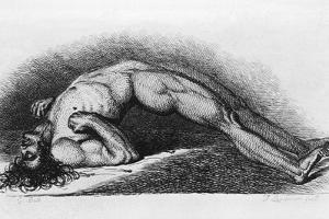The Contracted Body of Soldier Suffering from Tetanus by Charles Bell