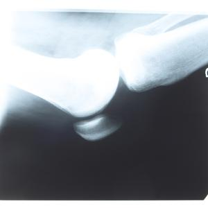 Close-up of X-Ray Photograph of Elbow