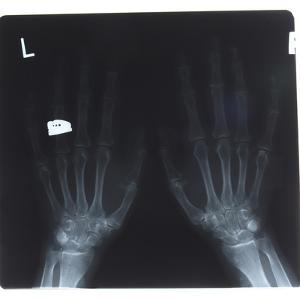 Close-up of X-Ray Photograph of Hands