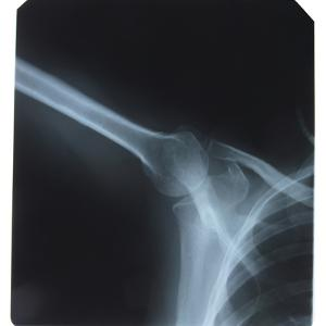 Close-up of X-Ray Photograph of Shoulder