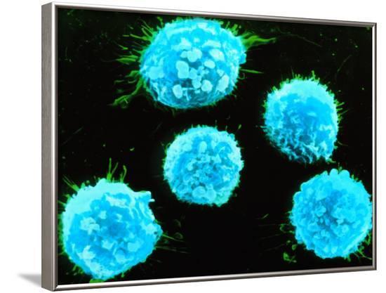 Coloured SEM of B-lymphocyte White Blood Cells--Framed Photographic Print