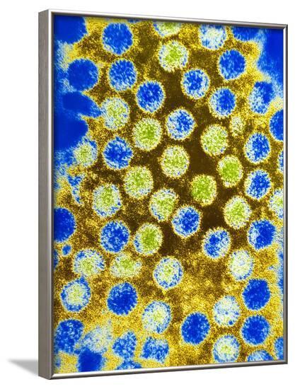 Coloured TEM of Rotaviruses--Framed Photographic Print