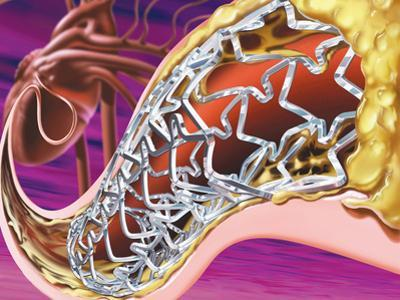 Stent in Coronary Artery of the Heart
