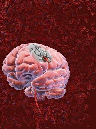Stroke, Occurs When a Part of the Brain Is Injured by a Disturbance to its Blood Supply