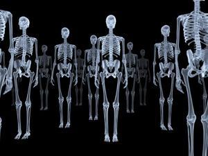 Skeletons, X-ray Artwork by David Mack