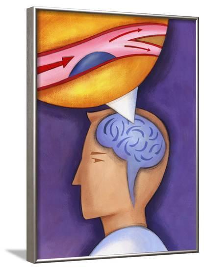Diagram of Brain Aneurysm--Framed Photo
