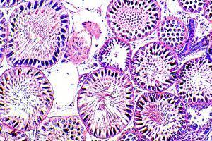Seminiferous Tubules by Dr. Keith Wheeler
