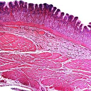 Small Intestine Section, Light Micrograph by Dr. Keith Wheeler