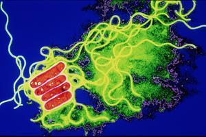 Legionella Bacteria by Dr. Linda Stannard