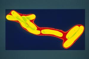 Mycobacterium Tuberculosis Bacterium by Dr. Linda Stannard