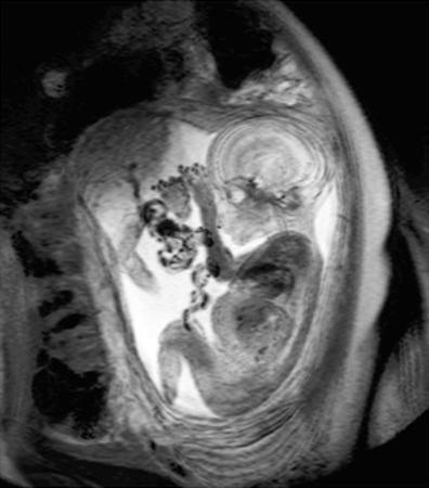 9 Month Foetus, MRI Scan by Du Cane Medical