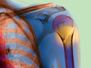 Broken Upper Arm Bone, X-ray by Du Cane Medical