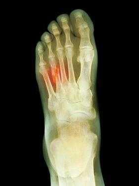 Fractured Foot, X-ray by Du Cane Medical