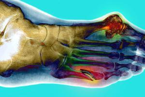 Fractured Foot by Du Cane Medical