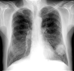 Lung Cancer, X-ray by Du Cane Medical