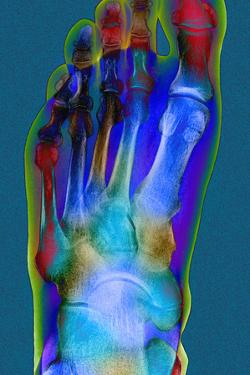Normal Foot, X-ray by Du Cane Medical