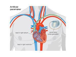 Artificial Pacemaker by Encyclopaedia Britannica