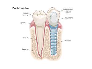 Dental Crown. Dentistry, Endodontics, Teeth, Tooth Damage, Oral Health, Health and Disease by Encyclopaedia Britannica