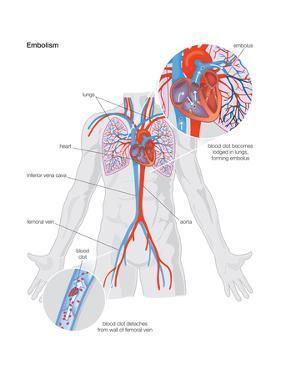 Embolism by Encyclopaedia Britannica