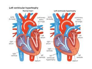 Left Ventricular Hypertrophy by Encyclopaedia Britannica
