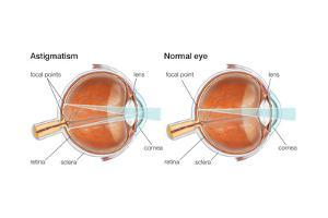 Scleral Buckle. Eye, Ophthalmology, Health and Disease by Encyclopaedia Britannica