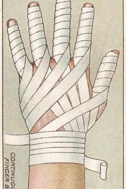Continuous Finger Bandage, No.48 from the 'First Aid' Series of 'Wills's Cigarettes' Cards, 1913 by English School