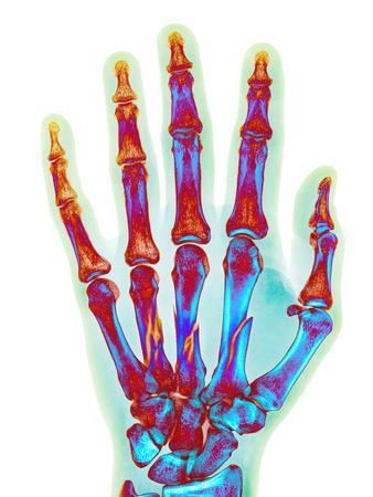 https://imgc.allpostersimages.com/img/posters/fractured-palm-bones-of-hand-x-ray_u-L-PZJOCU0.jpg?artPerspective=n