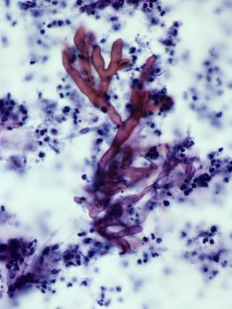 Aspergillus Fumigatus Fungi in Human Sputum, the Cause of Aspergillosis, PAS Stain, LM X100 by Gladden Willis
