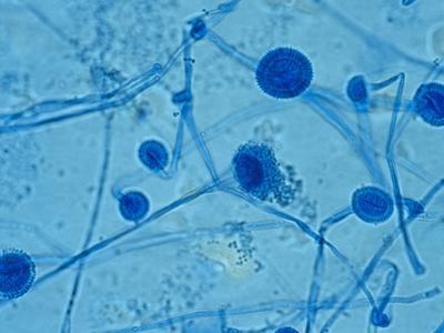 Aspergillus Fumigatus Fungus by Gladden Willis