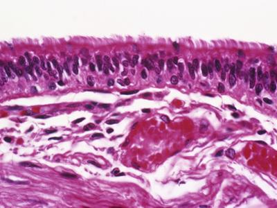 Ciliated Pseudostratified Columnar Epithelium Lining a Bronchus of the Human Lung, LM X160 by Gladden Willis