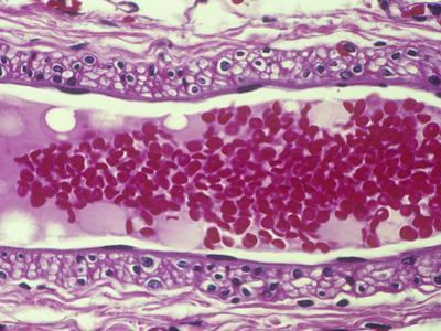 Human Vein Longitudinal Section Showing the Enclosed Red Blood Cells or Erythrocytes, LM X200 by Gladden Willis