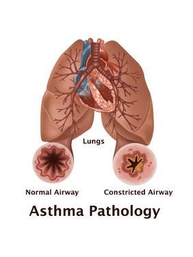 Asthma Pathology by Gwen Shockey