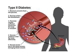 Type 2 Diabetes by Gwen Shockey